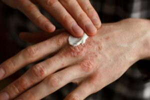 Low-dose Naltrexone for atopic dermatitis?