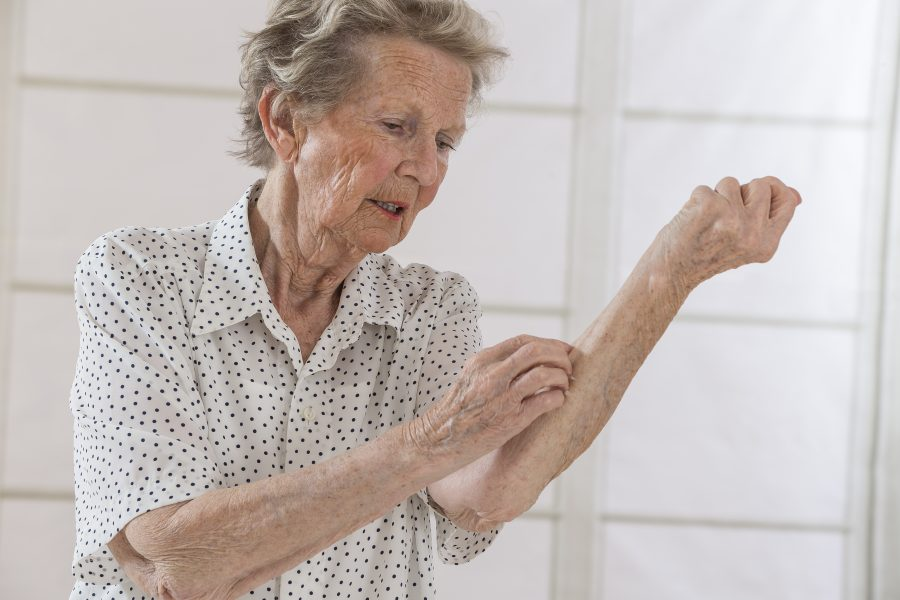 Atopic dermatitis in older adults is common, hard to treat