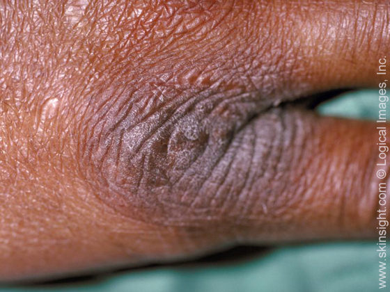 Types of eczema: neurodermatitis