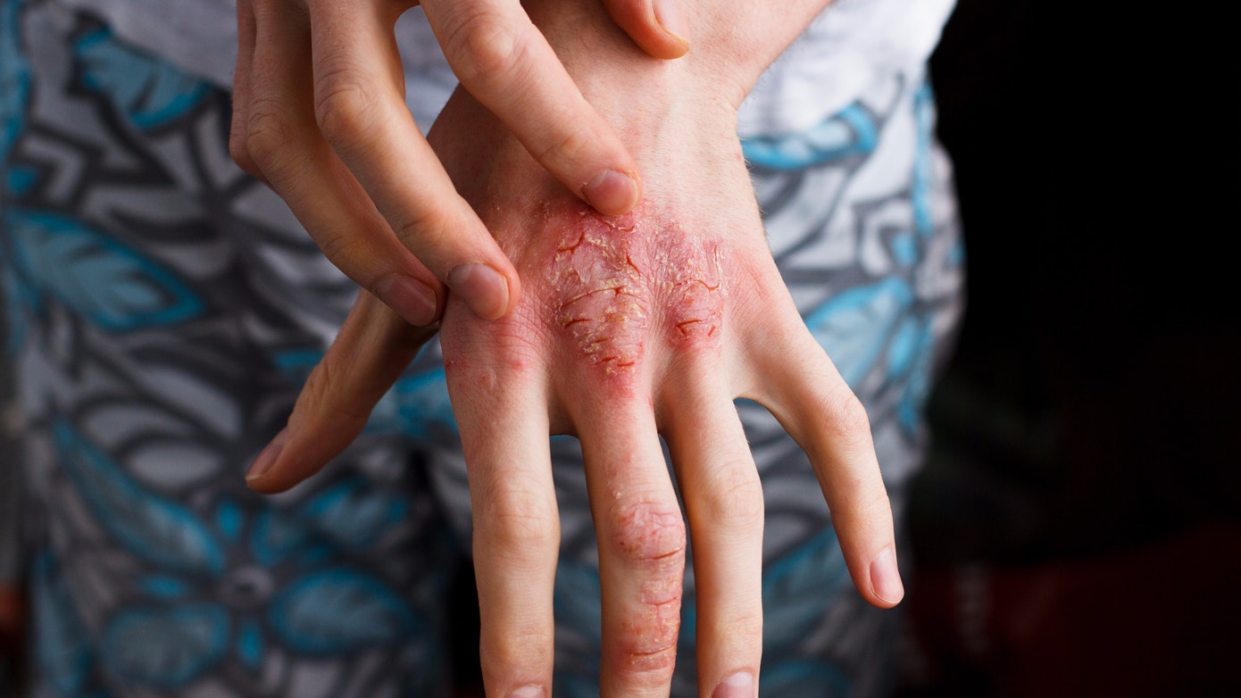 Types of eczema: atopic dermatitis