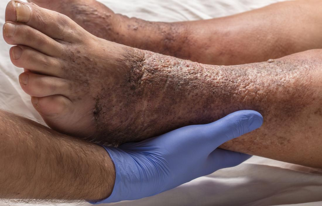 Types of eczema: stasis dermatitis