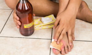 Apple cider vinegar applied to foot