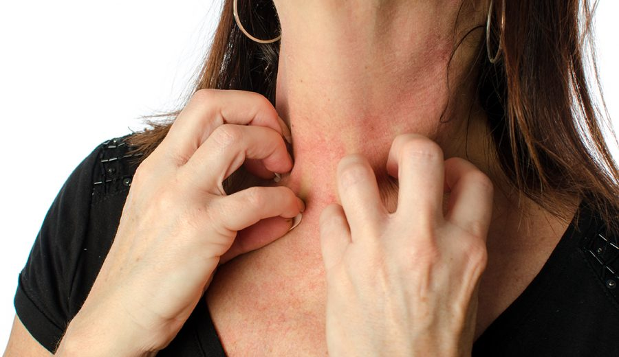 Woman scratches itchy skin on neck