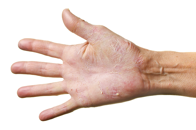 hand eczema can be caused by excessive washing