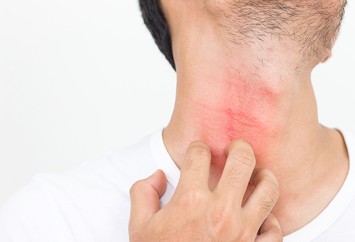 Man scratches eczema flare-up on his neck
